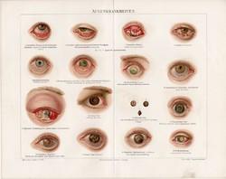 Szembetegségek (2), litográfia 1893, német, színes nyomat, anatómia, gyógyászat, ember, szem, hályog