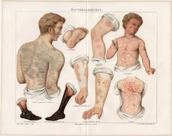 Bőrbetegségek, 1896, színes nyomat, német nyelvű, eredeti, litográfia, gyógyászat, bőr, ember, beteg